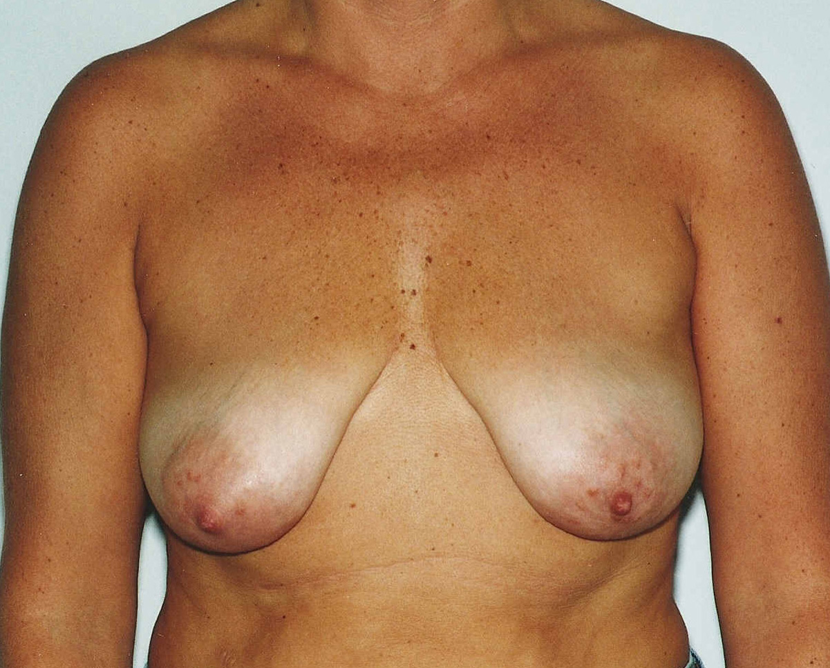 Why Am I Lactating After Breast Augmentation? Doctor